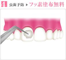 虫歯予防フッ素塗布無料