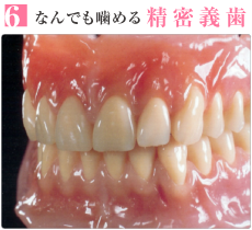 なんでも噛める精密義歯