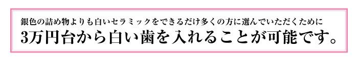 3万円台から白い歯を入れる事が可能です。